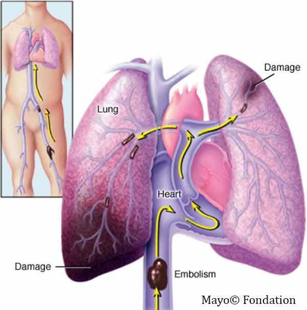 Embolie pulmonaire physio-pathologie