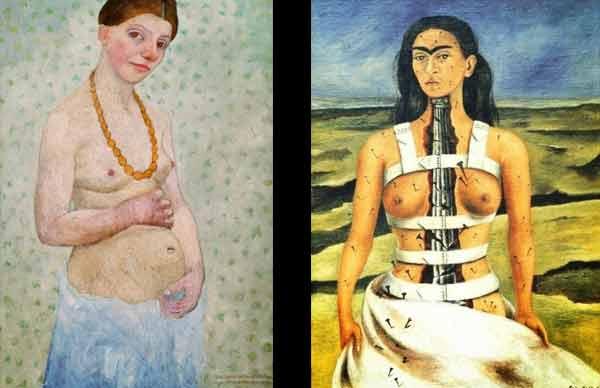 Peintres et embolie pulmonaire