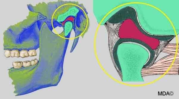 Articulation temporo-mandibulaire et DTM