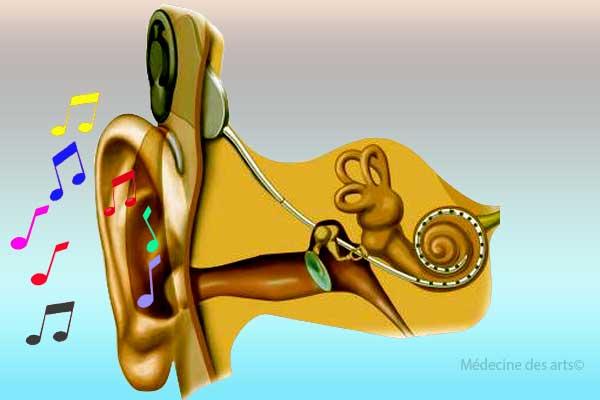 implant cochléaire et chant