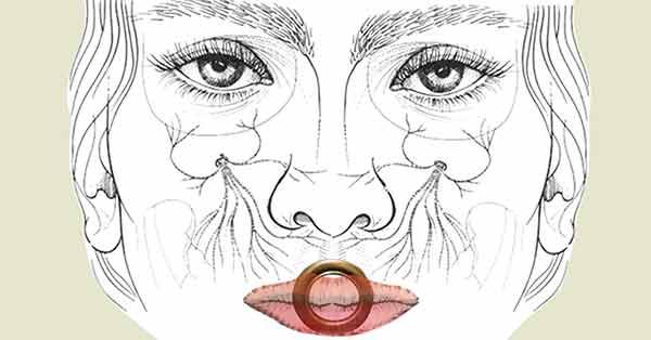 Neuropathie de la lèvre chez un trompettiste