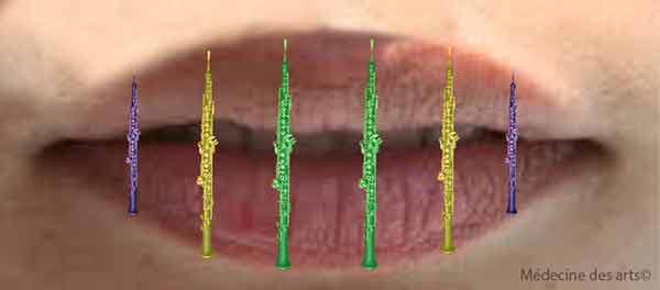 lésions des lèvres hautboiste