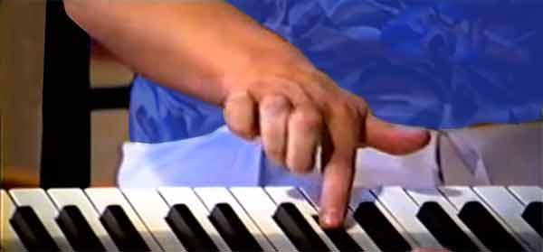Dystonie au piano et maladie professionnelle