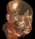 Image radiologique d'art