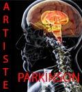 Artiste et parkinson