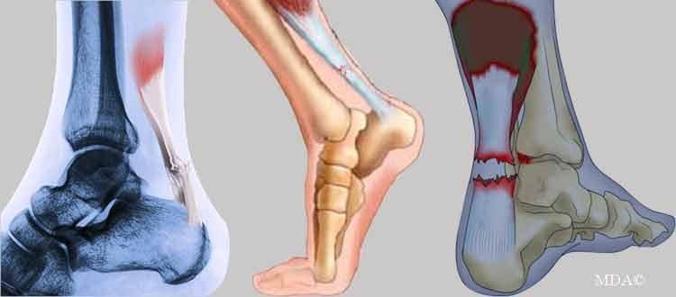 Rupture tendon d'Achille