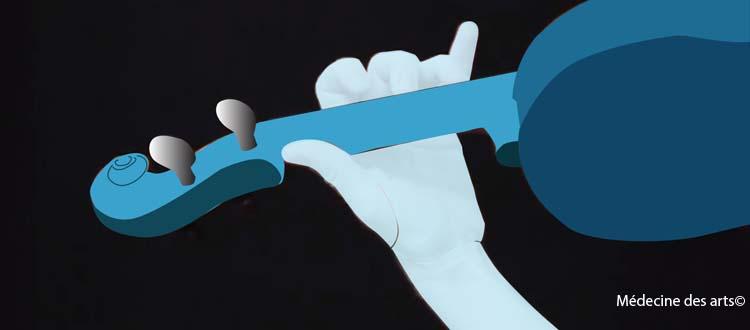 Troubles musculo-squelettiques, les facteurs de risque pour les musiciens