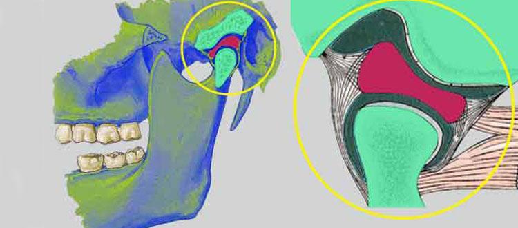 Troubles temporo-mandibulaires et douleurs musculo-squelettiques chez les artistes, musiciens, danseurs, chanteurs