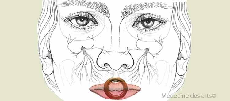 Compression nerveuse au niveau de la lèvre d'un trompettiste