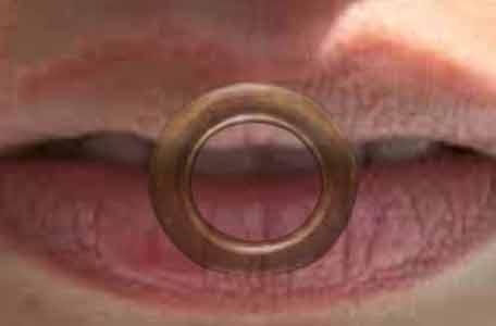 Lésions des lèvres (chéilite) chez un instrumentiste à vent